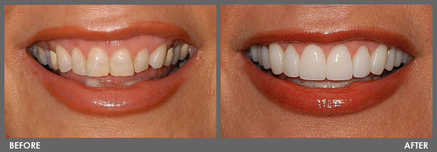 Dental Veneers  Instant Smile Makeover  Try Our Dentists