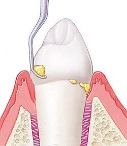 dental-cleaning-lincoln-ne-coddington-dental
