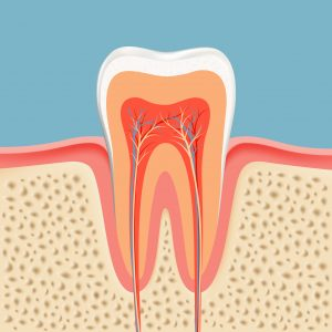 Image of a tooth that needs a root canal.