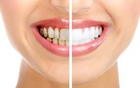 teeth-whitening -Lincoln-nebraska-dentist-