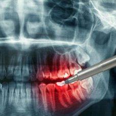 teeth xray coddington dental lincoln NE
