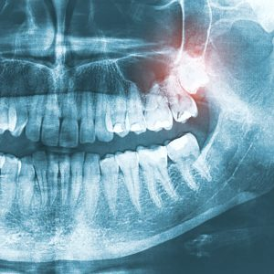 wisdom-tooth-lincoln-ne-coddington-dental