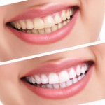 Before and after image of at home teeth whitening in Lincoln, NE.