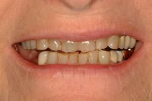 smile-makeover-cosmetic-dentist-younger-smile-coddington-dental-lincoln-ne