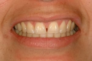 "Image of a ""before picture"" of a patient who is going to have a smile makeover to fix gaps in her teeth."