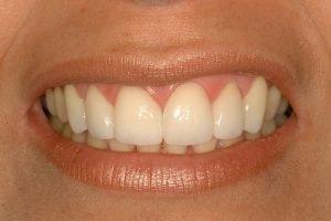 Smile Makeover cosmetic dentist fixing gaps coddington dental lincoln ne