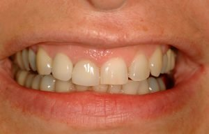 Before image of a patient who had a gummy smile makeover in Lincoln, NE at Coddington Dental.