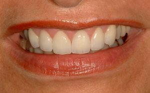 "Image of a ""gummy smile"" that has been fixed with a smile makeover in Lincoln, NE."