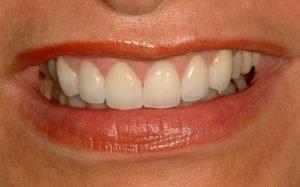 smile makeover cosmetic dentist gummy smile coddington dental lincoln ne