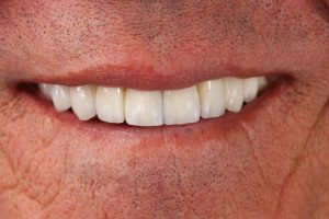 After image of a missing teeth smile makeover.