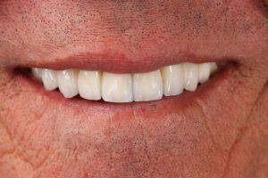 smile makeover cosmetic dentist missing teeth coddington dental lincoln ne 1