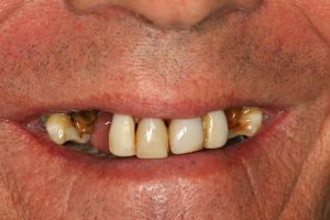 Before image of a missing teeth smile makeover.