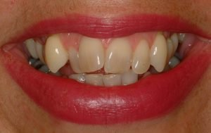 Before image of an instant orthodontics smile makeover.
