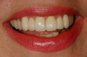 Image of a patient who's smile makeover fixed her crooked teeth.