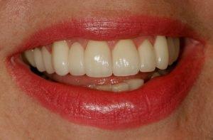 smile makeover cosmetic dentist orthodonics straight teeth coddington dental lincoln ne