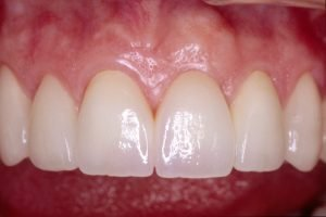 After image of a tooth implant smile makeover.