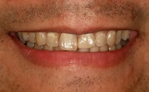 This is a picture of a smile that is being made-over with teeth whitening.