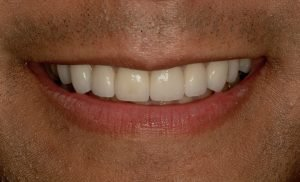 After image of a smile makeover with teeth whitening.