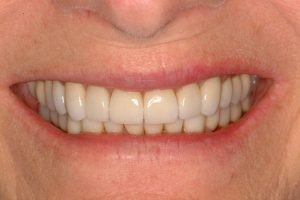 After image of a younger smile makeover.