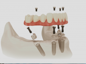 Hybrid prostesis Implant dentures-clear choice dentists Lincoln NE