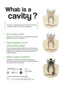what is a cavity flyer