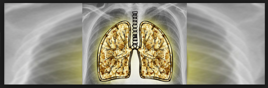 Image of an x-ray displaying popcorn lung disease, which is something that can be acquired if you use E-cigarettes.
