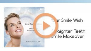 "Video image of the Your Smile Wish ""Straighter Teeth Smile Makeover"" by Dr. Kathryn Alderman."
