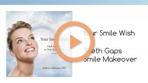 "Image of ""Teeth Gaps Smile Makeover"" in Your Smile Wish by Dr. Kathryn Alderman."