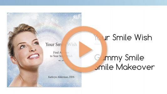 gummy smile your wish dr kathryn Smile Makeover