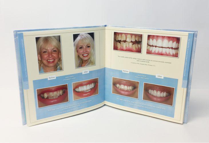 you-smile-wish-veneers-crowns-pres-dr-kathryn