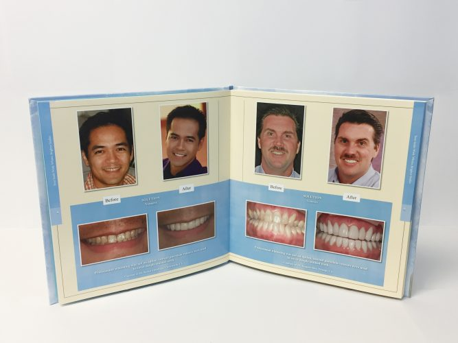 you-smile-wish-veneers-pres-dr-kathryn