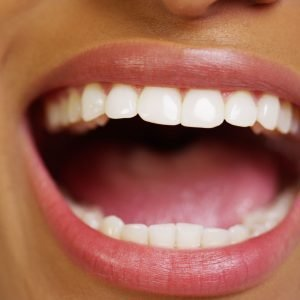 Image of a mouth that had professional teeth whitening done.