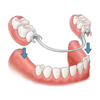Image of removable partial dentures, another great option versus an implant bridge.