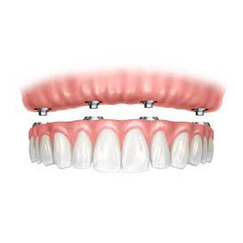coddington dental for Implant denture