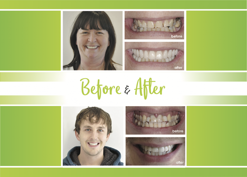 Before and After of Non-removable denture option by dr brad