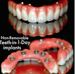 Dr.Brad Alderman Non-removable denture option Lincoln, NE