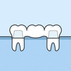 Image showing a side profile of how dental bridges look.