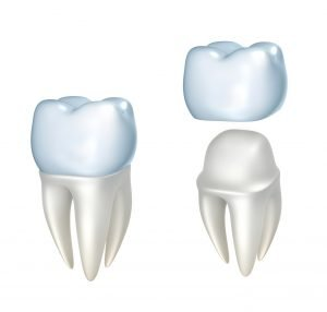 Image of a metal free crown and how it protects the tooth. Crowns are likely needed before the placement of dental bridges to help strengthen adjacent teeth.